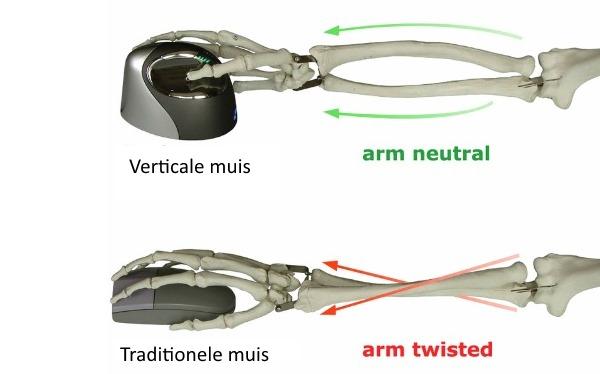 verticale muis vs tradiotionele muis